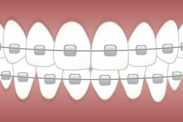 ortodont